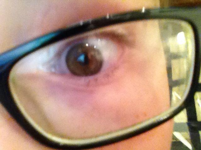 Josiah eye